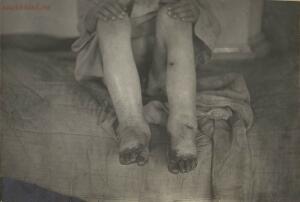 Дети Голодомора 1921-1922 гг. - 50596810872_c6ec651574_h.jpg