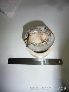 Мочевой пузырь с кристаллическим составом внутри - IMG-20170128-WA0019.jpg